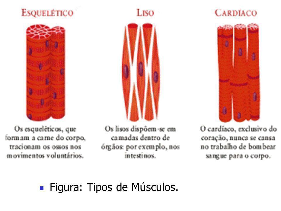 Figura: Tipos de Músculos.