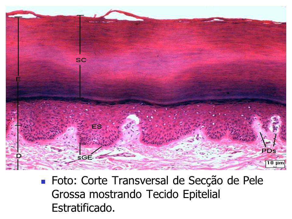 Foto: Corte Transversal de Secção de Pele Grossa mostrando Tecido Epitelial Estratificado.