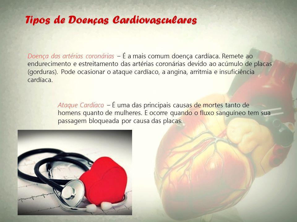 Tipos de Doenças Cardiovasculares