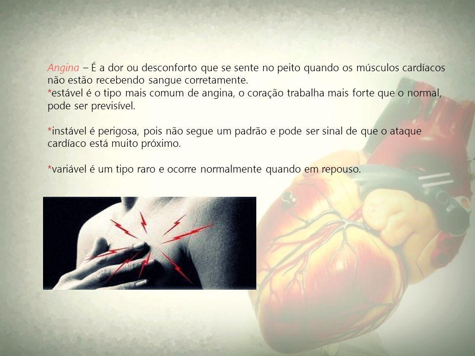 Angina – É a dor ou desconforto que se sente no peito quando os músculos cardíacos não estão recebendo sangue corretamente.