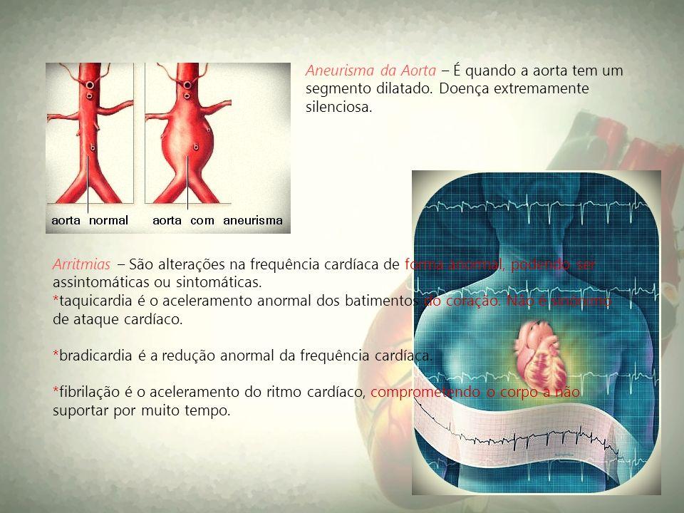 Aneurisma da Aorta – É quando a aorta tem um segmento dilatado