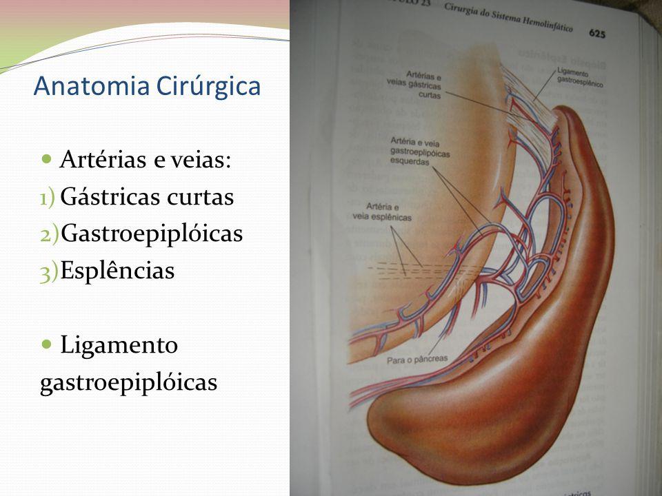 Anatomia Cirúrgica Artérias e veias: Gástricas curtas Gastroepiplóicas
