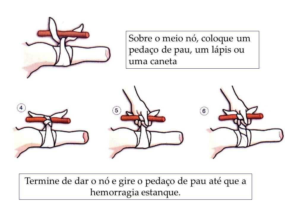 Sobre o meio nó, coloque um pedaço de pau, um lápis ou uma caneta