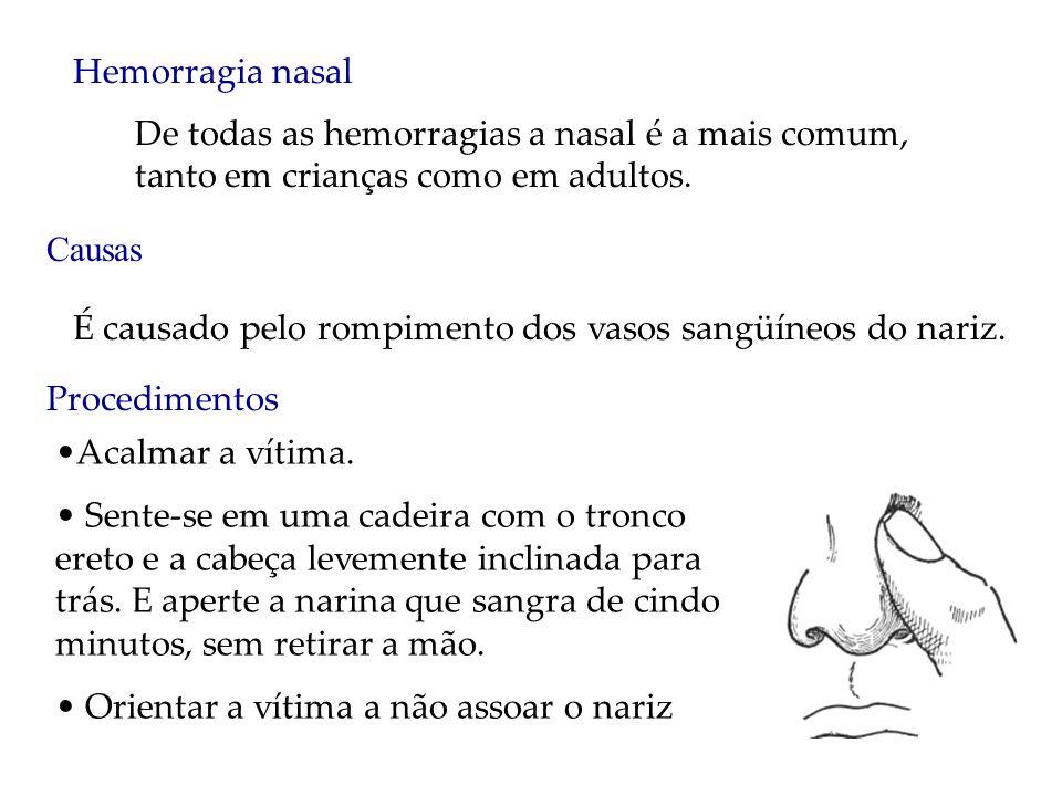 Hemorragia nasal De todas as hemorragias a nasal é a mais comum, tanto em crianças como em adultos.