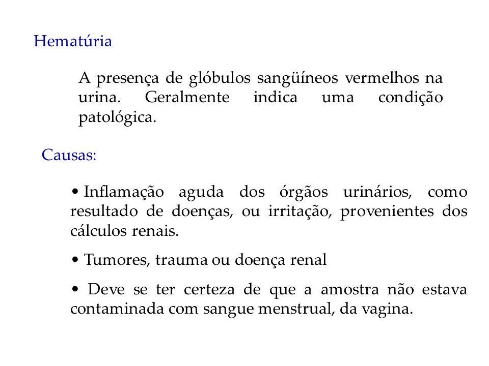 Hematúria A presença de glóbulos sangüíneos vermelhos na urina. Geralmente indica uma condição patológica.