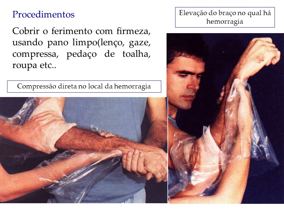 Procedimentos Elevação do braço no qual há hemorragia.