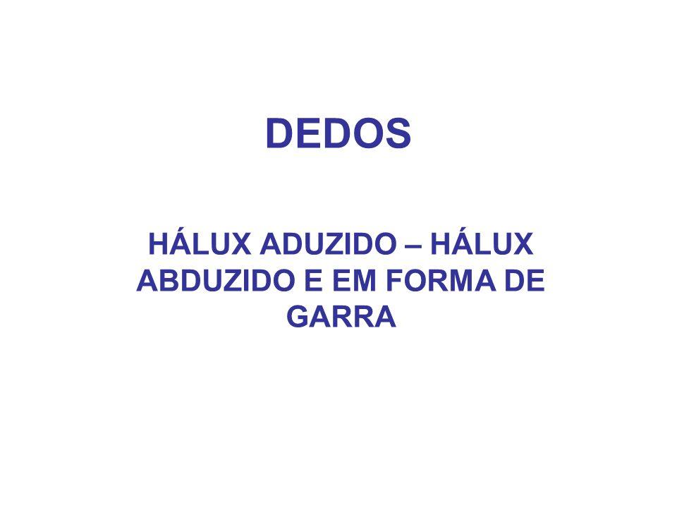 HÁLUX ADUZIDO – HÁLUX ABDUZIDO E EM FORMA DE GARRA