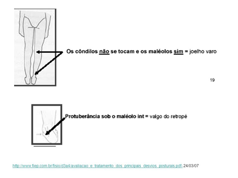 http://www.fiep.com.br/fisio/d3a4/avaliacao_e_tratamento_dos_principais_desvios_posturais.pdf- 24/03/07