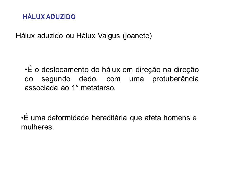 Hálux aduzido ou Hálux Valgus (joanete)
