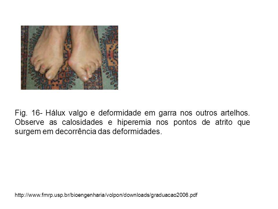 Fig. 16- Hálux valgo e deformidade em garra nos outros artelhos