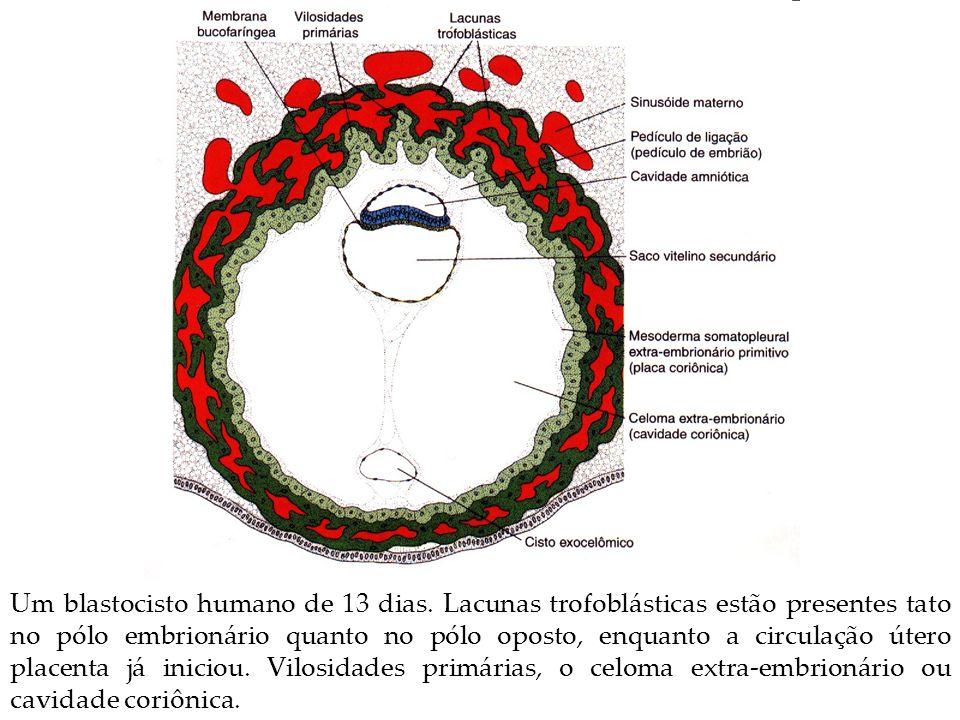 Um blastocisto humano de 13 dias