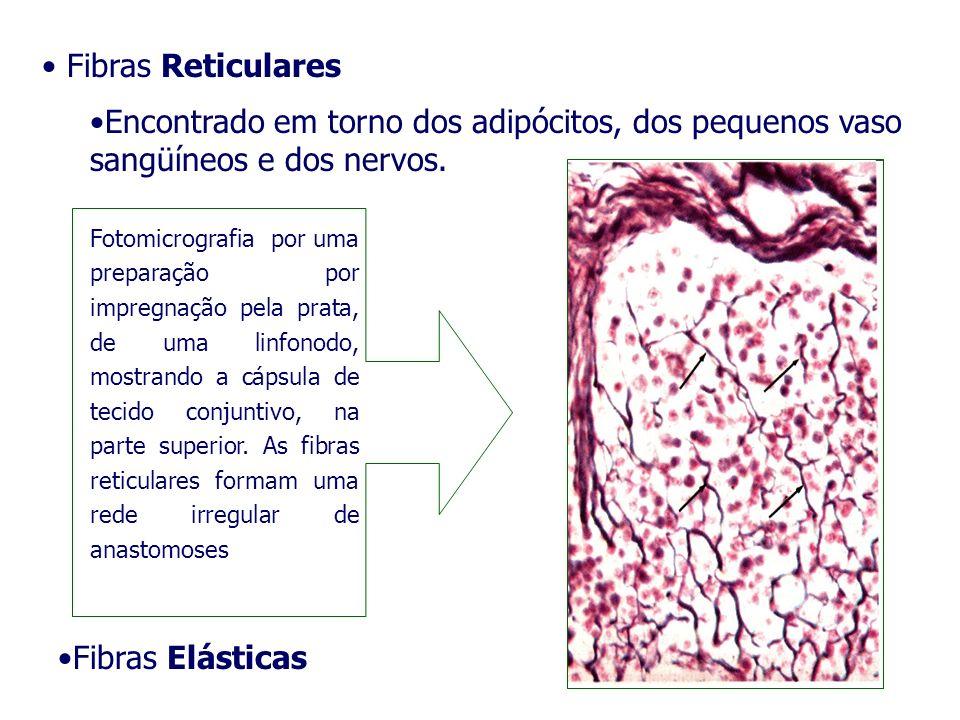 Fibras Reticulares Encontrado em torno dos adipócitos, dos pequenos vaso sangüíneos e dos nervos.