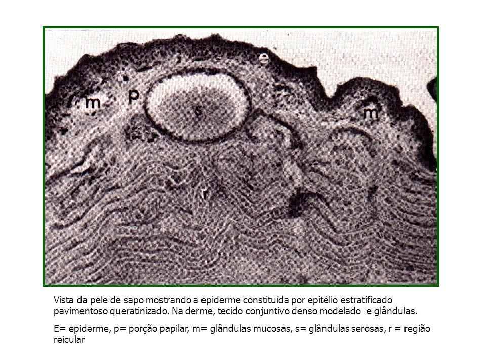 Vista da pele de sapo mostrando a epiderme constituída por epitélio estratificado pavimentoso queratinizado. Na derme, tecido conjuntivo denso modelado e glândulas.