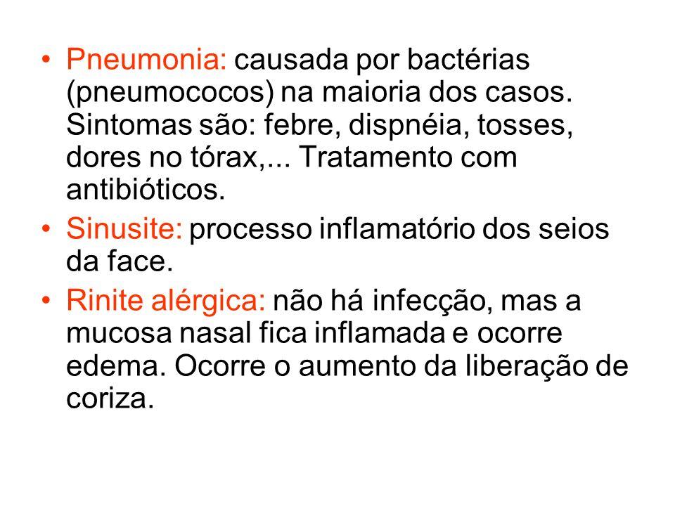 Pneumonia: causada por bactérias (pneumococos) na maioria dos casos