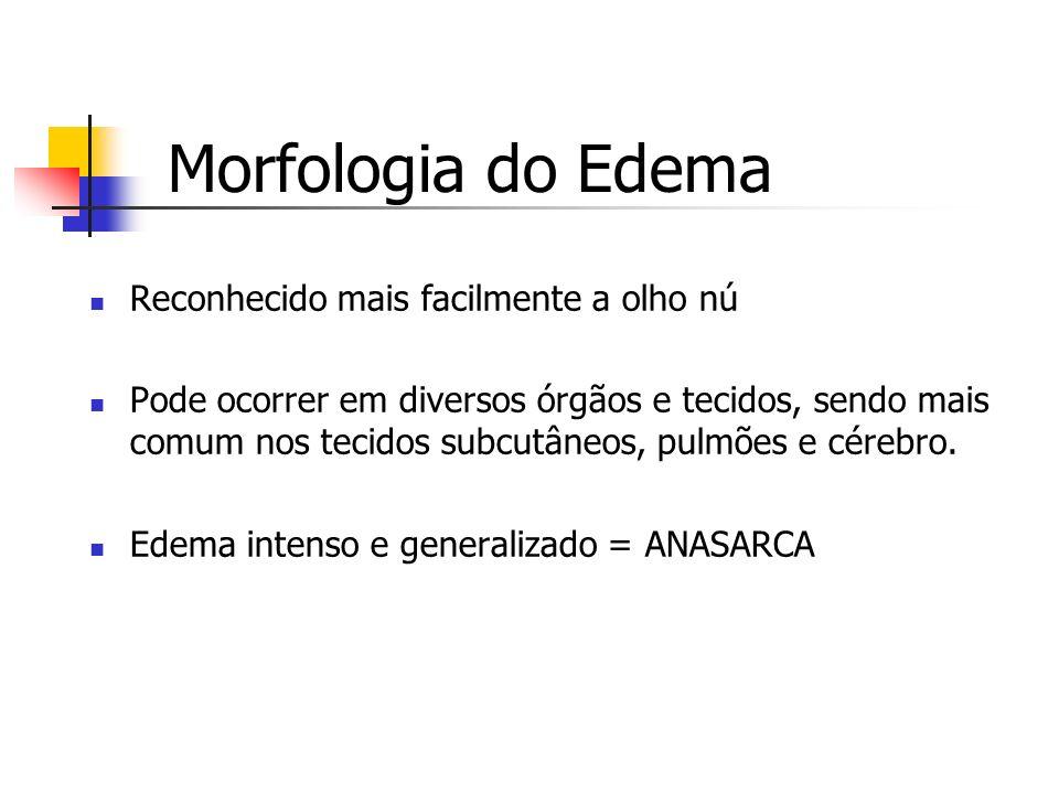 Morfologia do Edema Reconhecido mais facilmente a olho nú