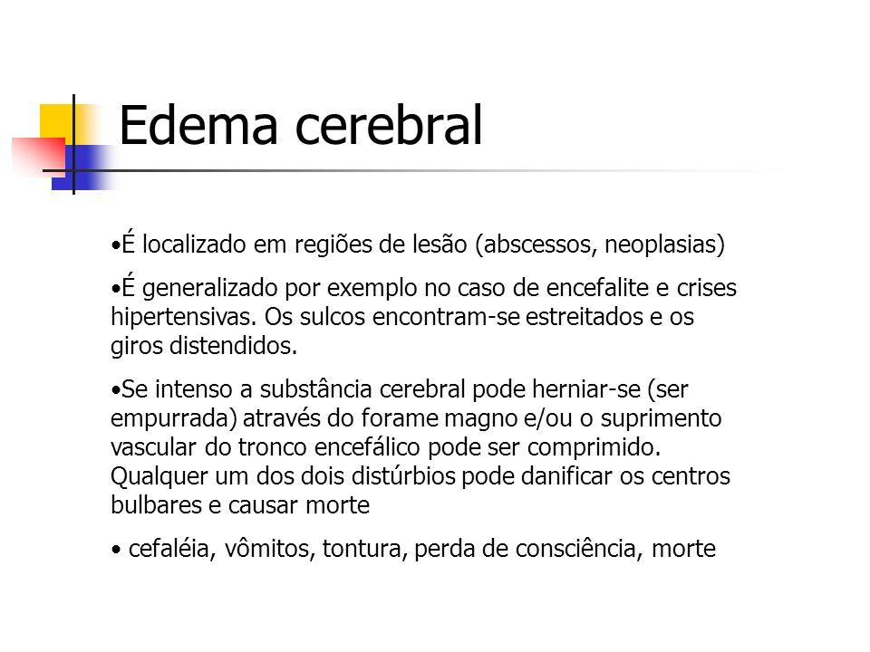Edema cerebral É localizado em regiões de lesão (abscessos, neoplasias)