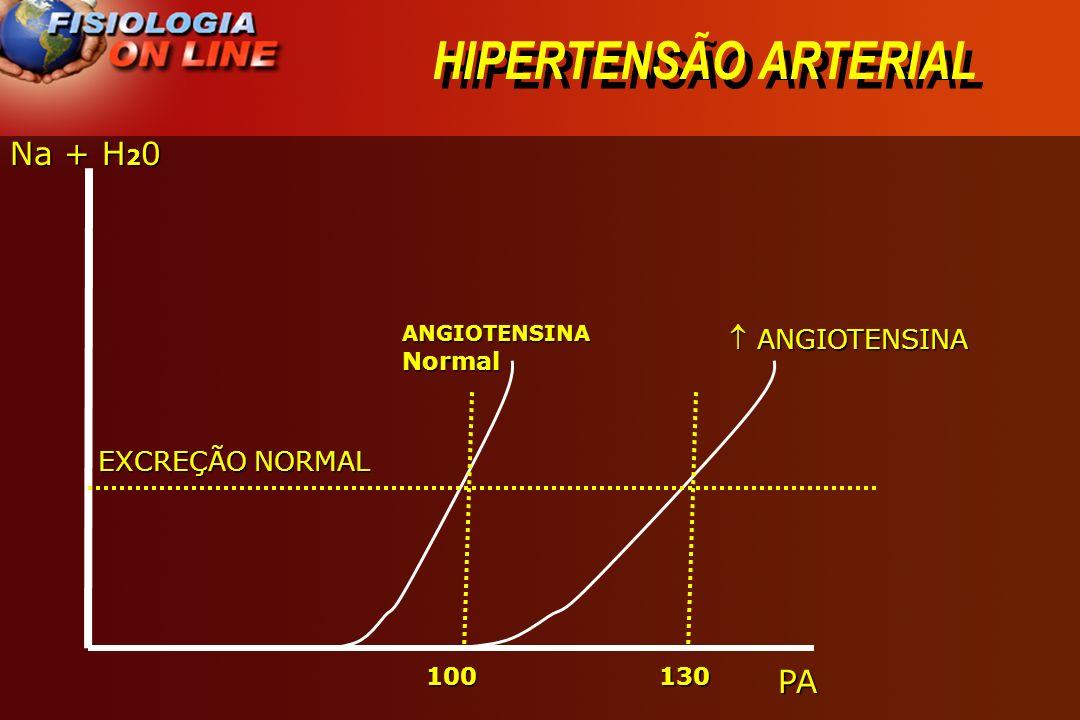 HIPERTENSÃO ARTERIAL Na + H20 PA  ANGIOTENSINA EXCREÇÃO NORMAL 100