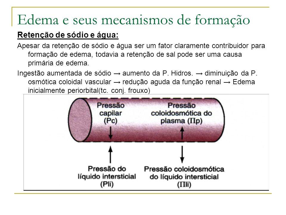 Edema e seus mecanismos de formação