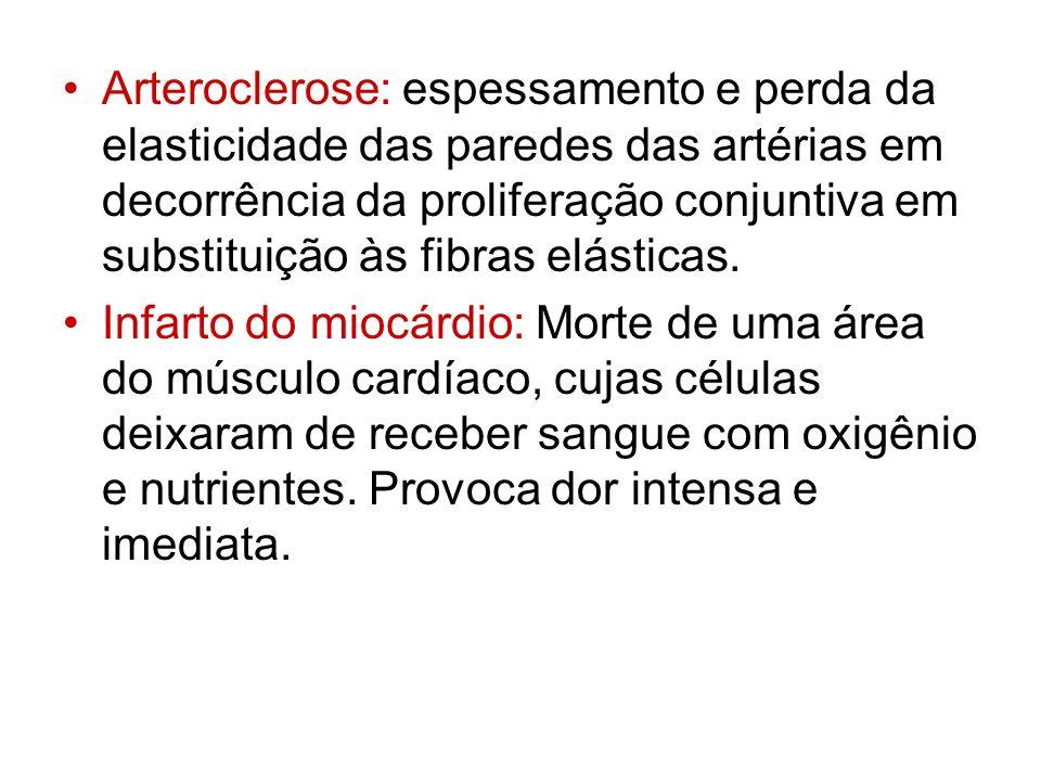 Arteroclerose: espessamento e perda da elasticidade das paredes das artérias em decorrência da proliferação conjuntiva em substituição às fibras elásticas.