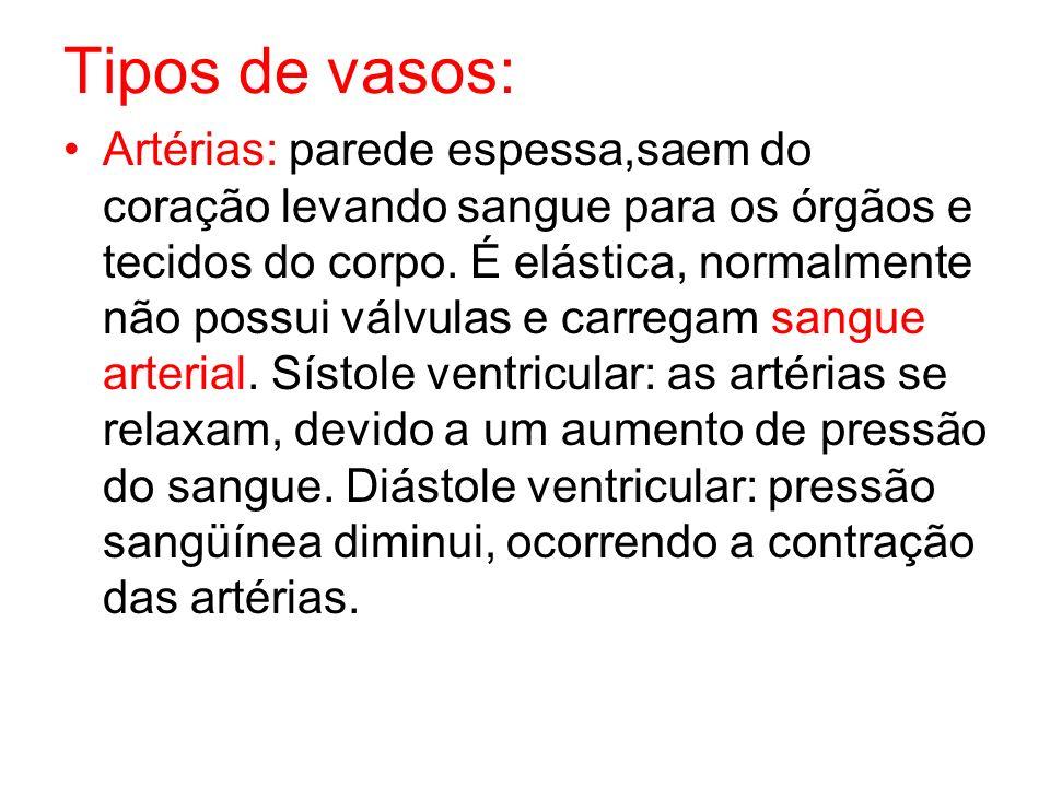 Tipos de vasos: