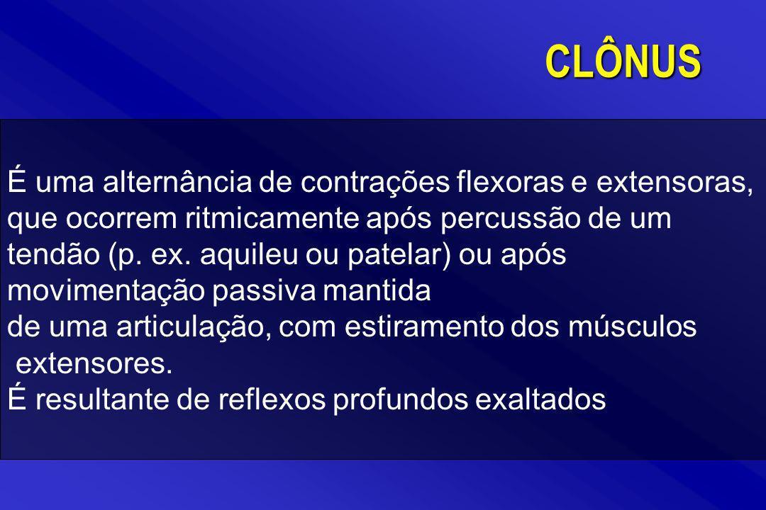 CLÔNUS
