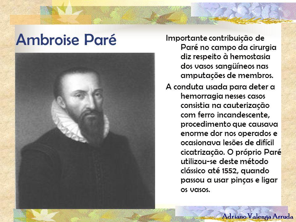Ambroise Paré Importante contribuição de Paré no campo da cirurgia diz respeito à hemostasia dos vasos sangüíneos nas amputações de membros.