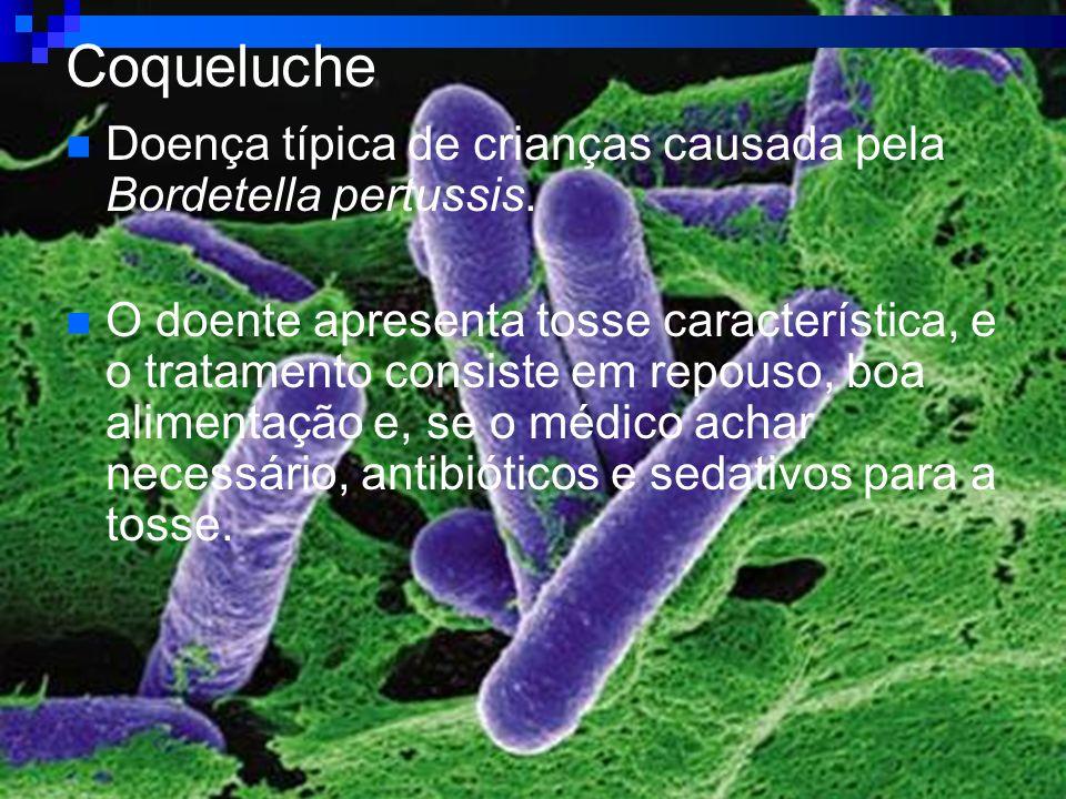 Coqueluche Doença típica de crianças causada pela Bordetella pertussis.