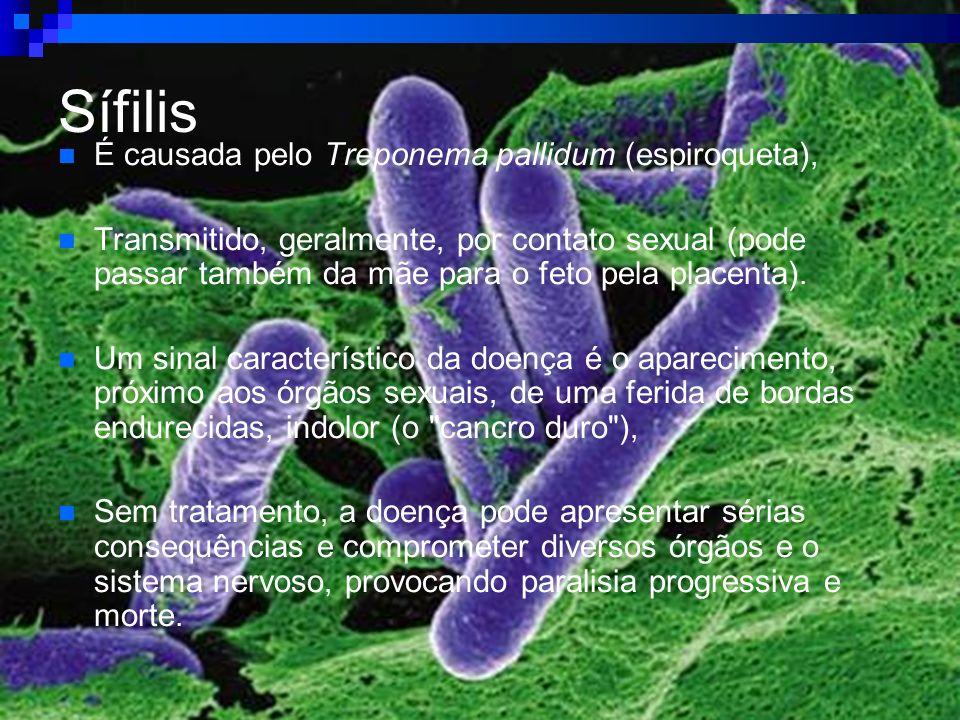 Sífilis É causada pelo Treponema pallidum (espiroqueta),