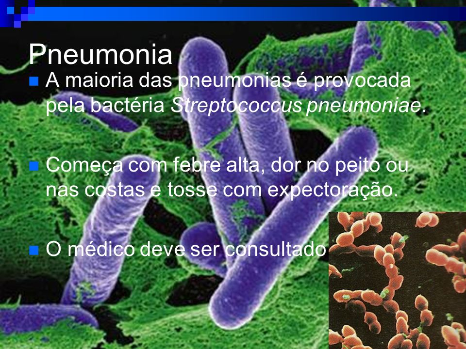 Pneumonia A maioria das pneumonias é provocada pela bactéria Streptococcus pneumoniae.