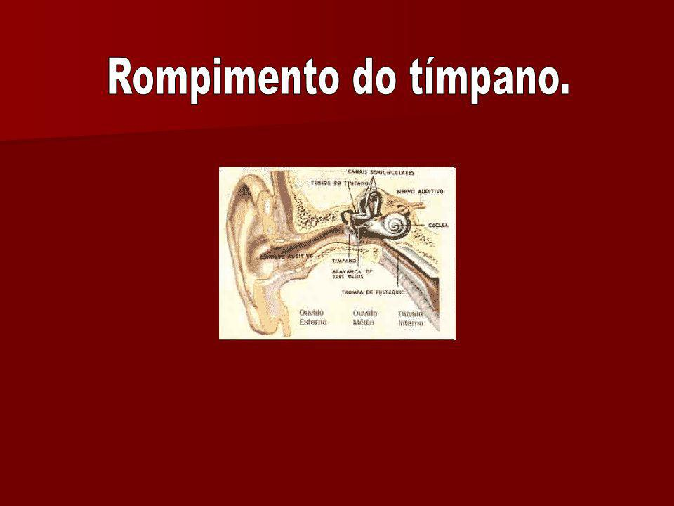 Rompimento do tímpano.