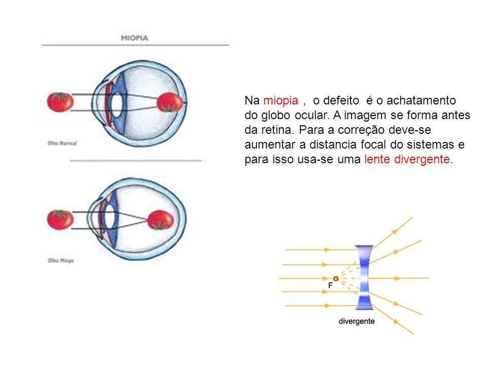 Na miopia , o defeito é o achatamento do globo ocular