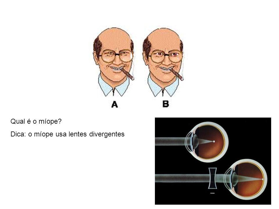Qual é o míope Dica: o míope usa lentes divergentes