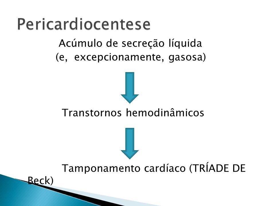 Pericardiocentese Acúmulo de secreção líquida (e, excepcionamente, gasosa) Transtornos hemodinâmicos Tamponamento cardíaco (TRÍADE DE Beck)