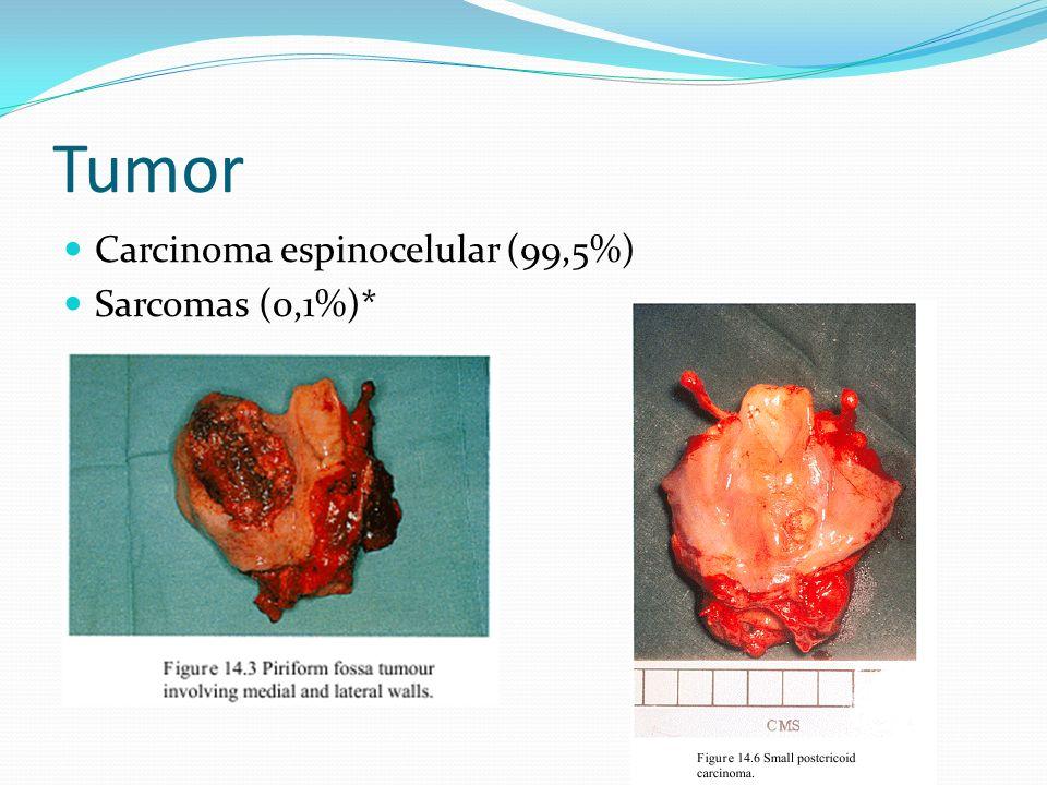 Tumor Carcinoma espinocelular (99,5%) Sarcomas (0,1%)*