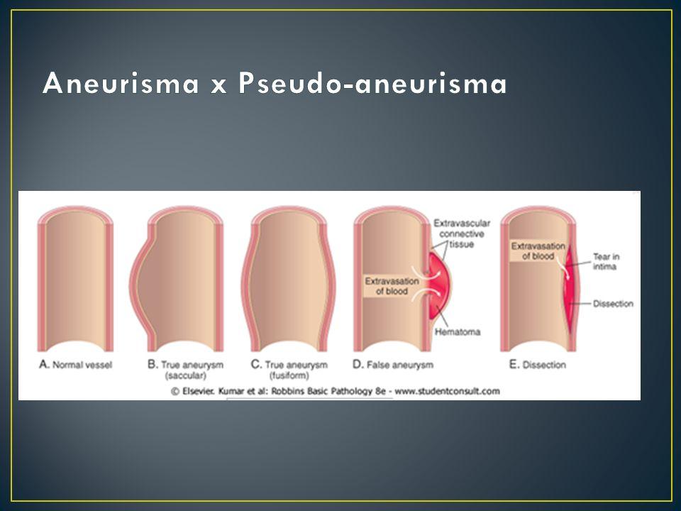 Aneurisma x Pseudo-aneurisma