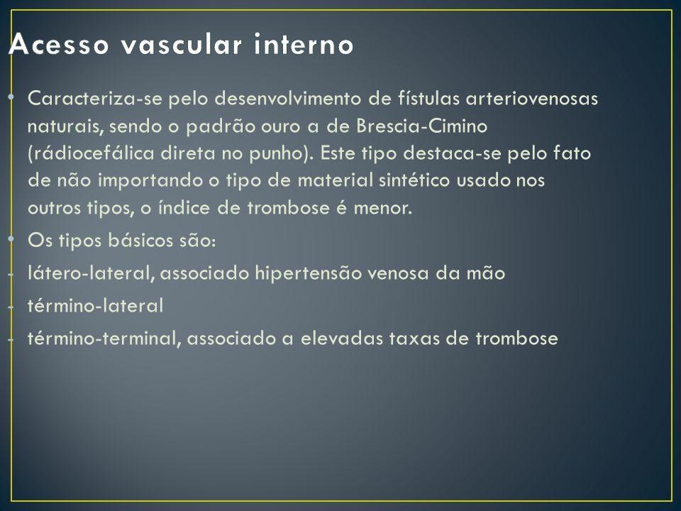 Acesso vascular interno