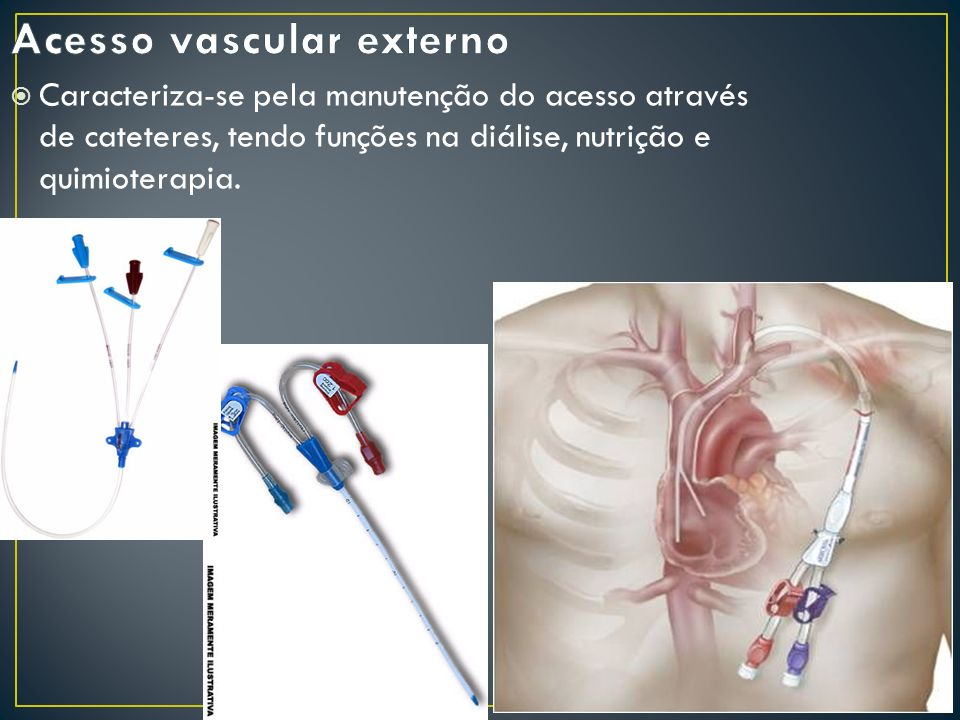 Acesso vascular externo