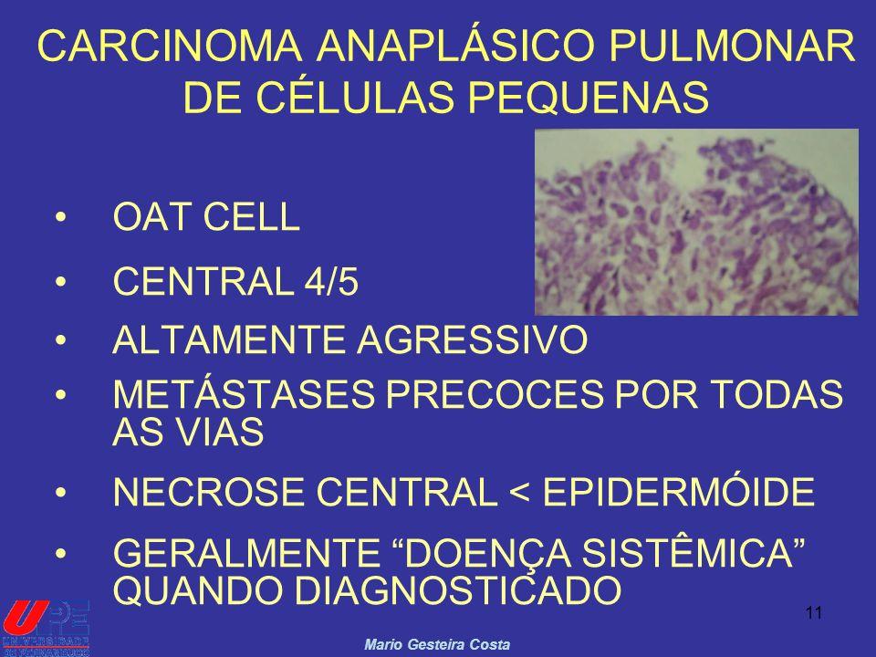 CARCINOMA ANAPLÁSICO PULMONAR DE CÉLULAS PEQUENAS