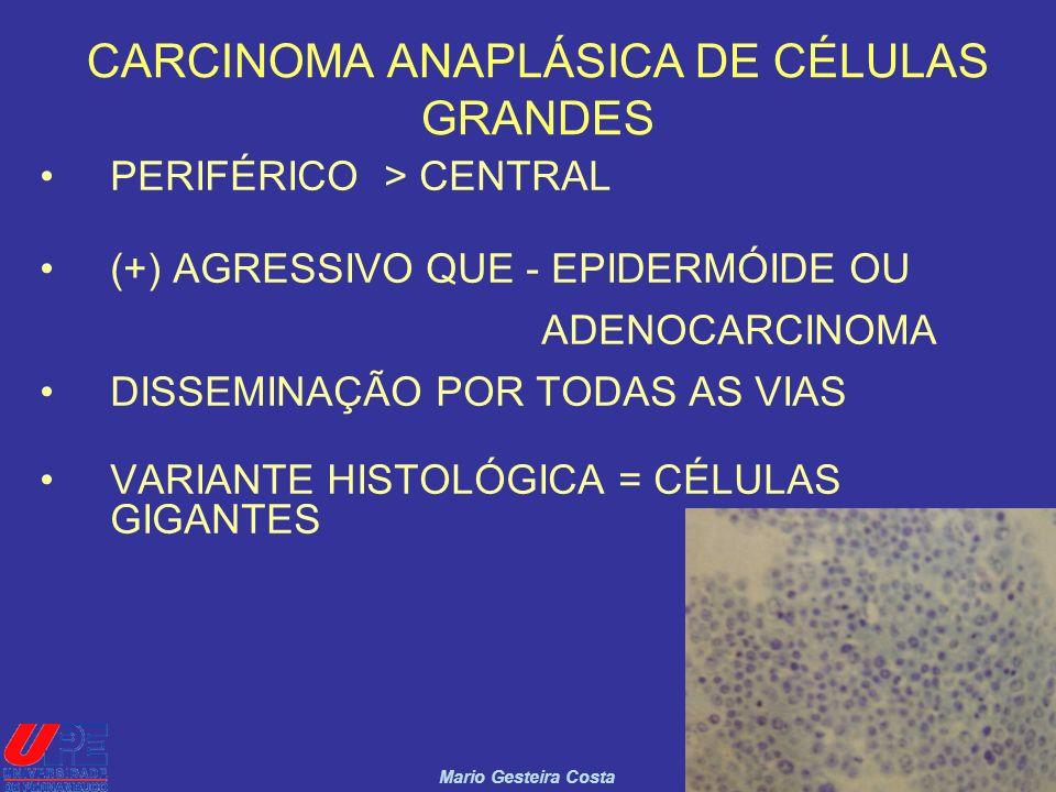 CARCINOMA ANAPLÁSICA DE CÉLULAS GRANDES