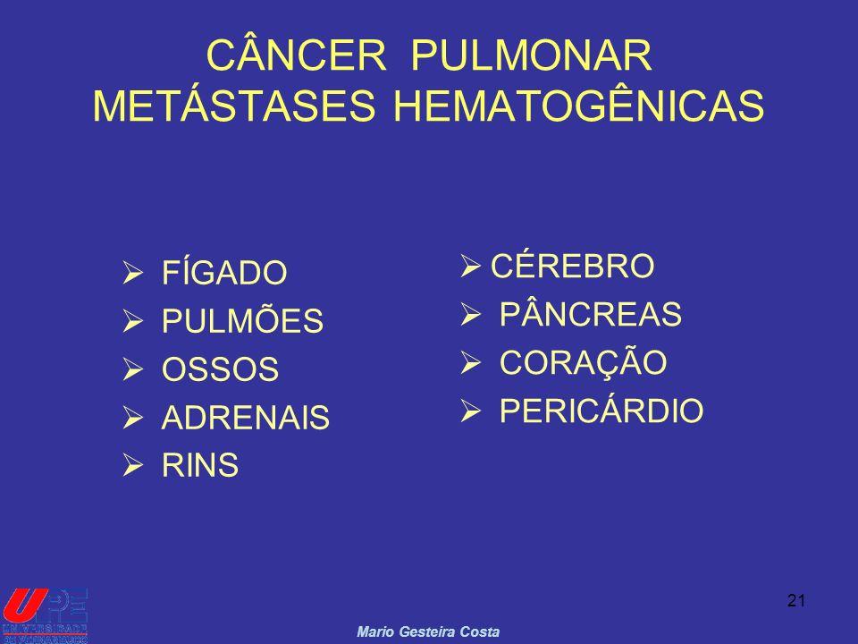 CÂNCER PULMONAR METÁSTASES HEMATOGÊNICAS