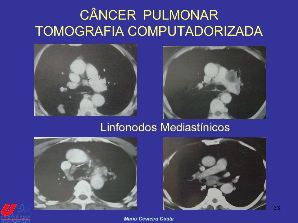CÂNCER PULMONAR TOMOGRAFIA COMPUTADORIZADA