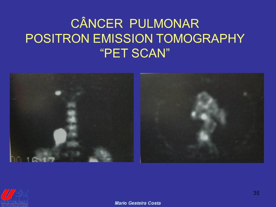 CÂNCER PULMONAR POSITRON EMISSION TOMOGRAPHY PET SCAN