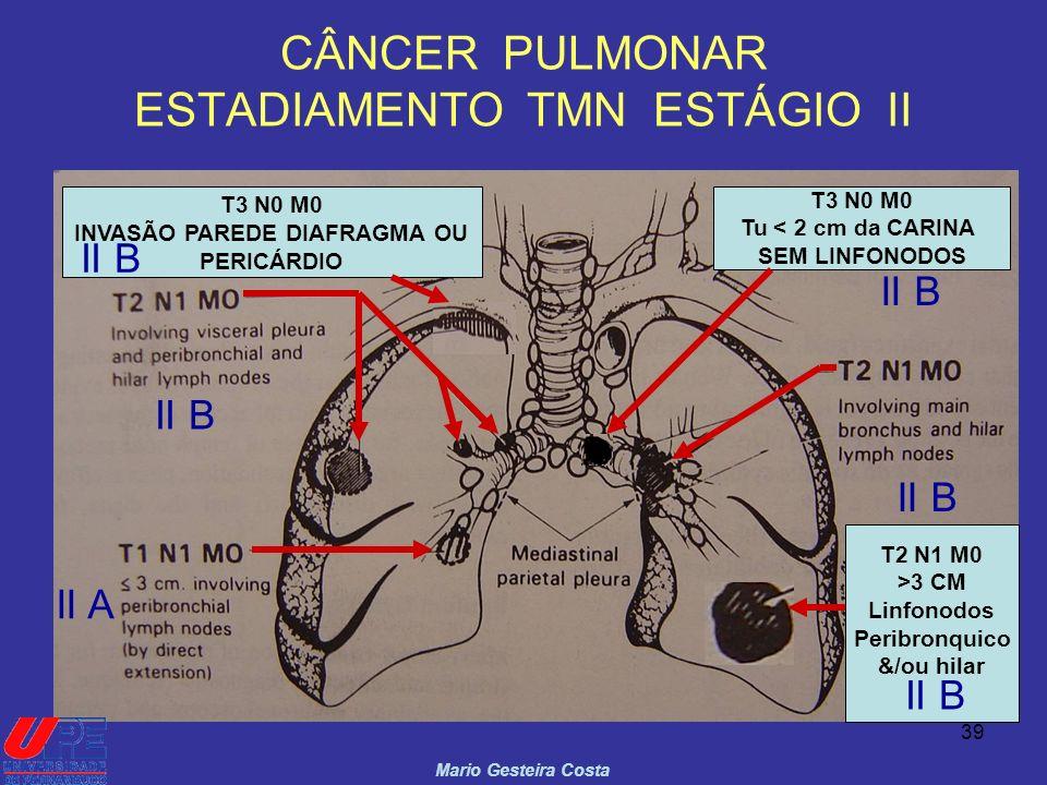 CÂNCER PULMONAR ESTADIAMENTO TMN ESTÁGIO II