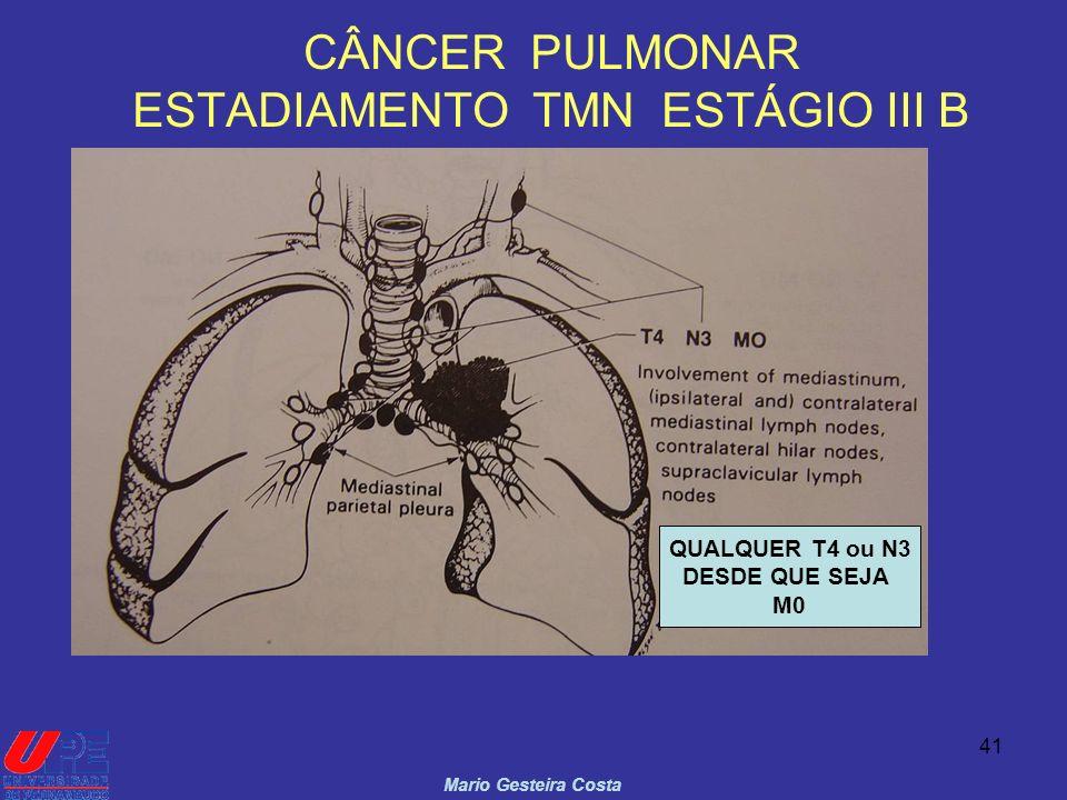 CÂNCER PULMONAR ESTADIAMENTO TMN ESTÁGIO III B