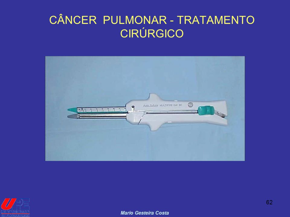 CÂNCER PULMONAR - TRATAMENTO CIRÚRGICO