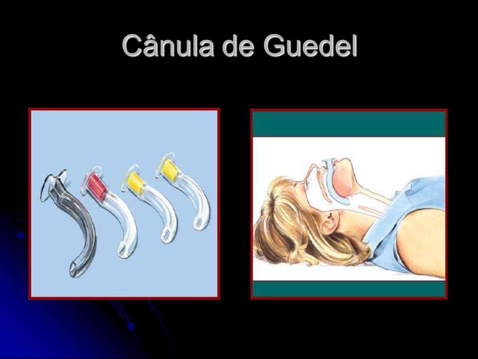 Cânula de Guedel