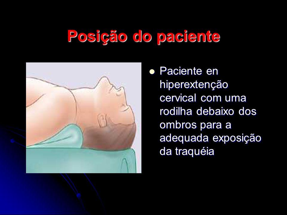 Posição do paciente Paciente en hiperextenção cervical com uma rodilha debaixo dos ombros para a adequada exposição da traquéia.