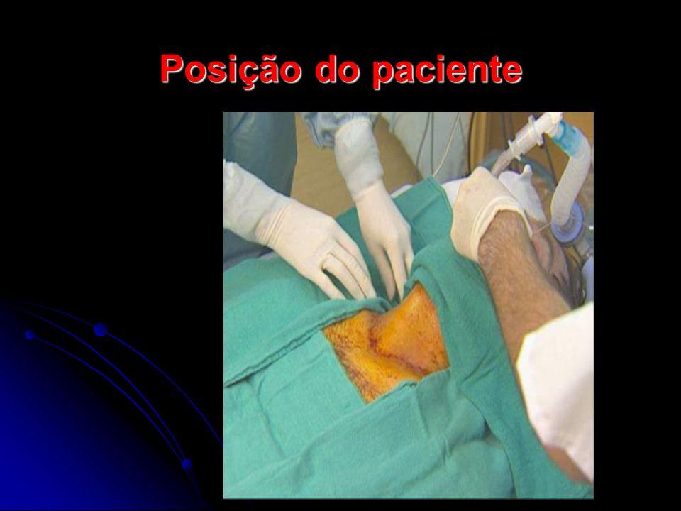 Posição do paciente