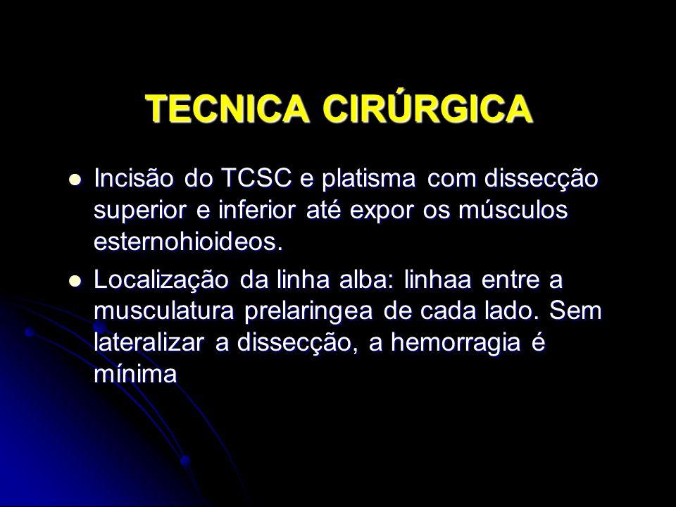 TECNICA CIRÚRGICA Incisão do TCSC e platisma com dissecção superior e inferior até expor os músculos esternohioideos.