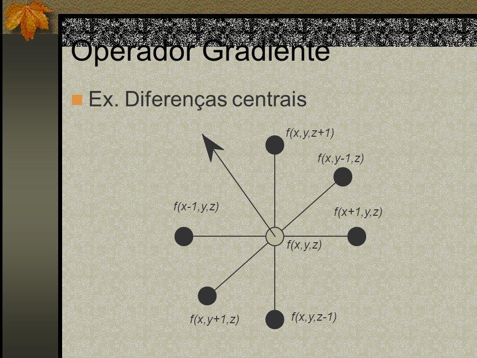 Operador Gradiente Ex. Diferenças centrais f(x,y,z+1) f(x,y-1,z)